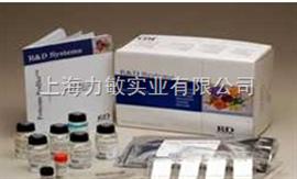RD 3339-FB-025R&D供应商Recombinant Rat FGF basic 重组大鼠碱性成纤维细胞生长因子